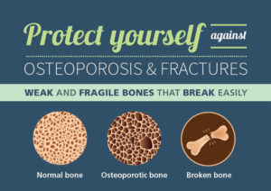 Protect yourself against osteoporosis and fractures